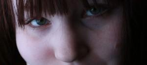 Ácido hialurónico ojeras