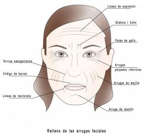 Relleno arrugas faciales con ácido hialurónico