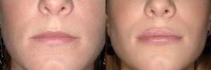 Resultados aumento de labios