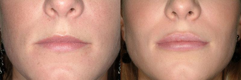 acido hialuronico labios duele