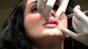 Relleno de labios con Juvederm