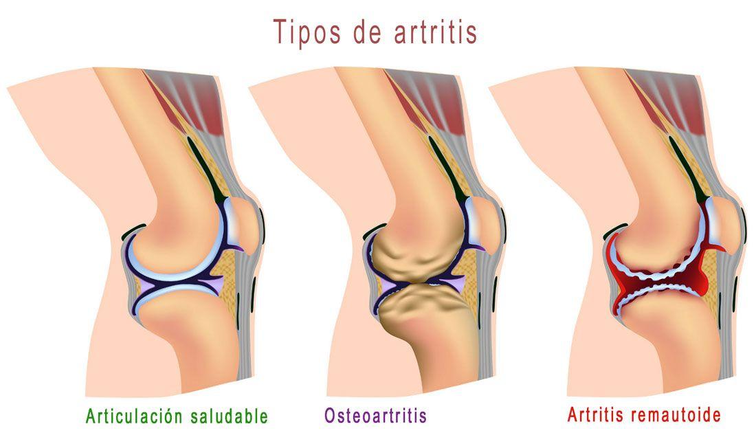 Artritis del dolor del pie inferior