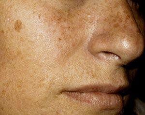 Manchas en la piel de la cara