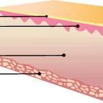 acido hialuronico piel