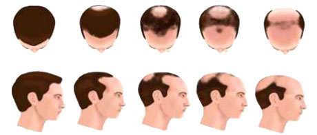 Relación entre la enzima 5 alfa reductasa y alopecia o caída del pelo