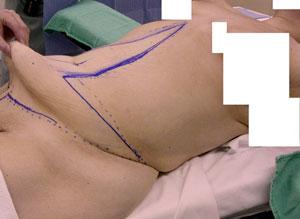 abdominoplastia operacion