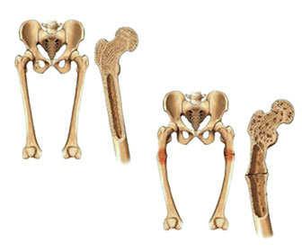 Absorción de calcio en los huesos