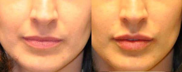 Resultados del ácido hialurónico en labios