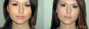 Conseguir con ácido hialurónico labios gruesos y carnosos