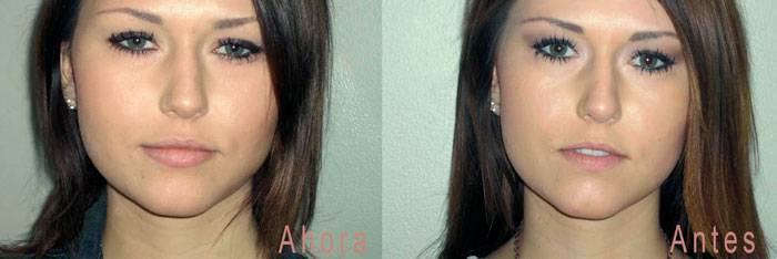 Ácido hialurónico en labios antes y después