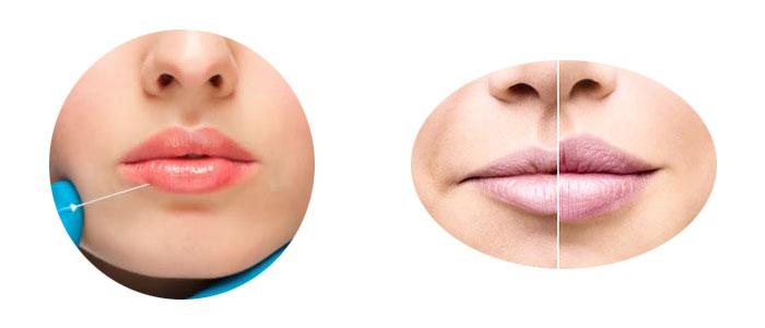 Precio del ácido hialurónico en los labios (aumento e inyección)