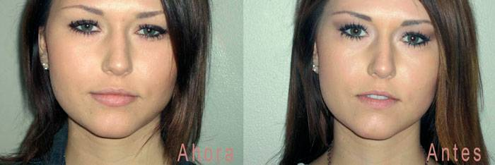 acido hialuronico labios crema