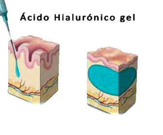 acido hialuronico para relleno facial