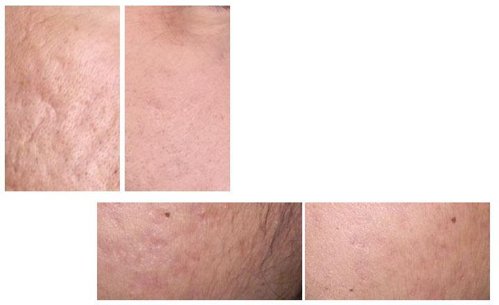 Ácido retonoico para el acné, antes y después
