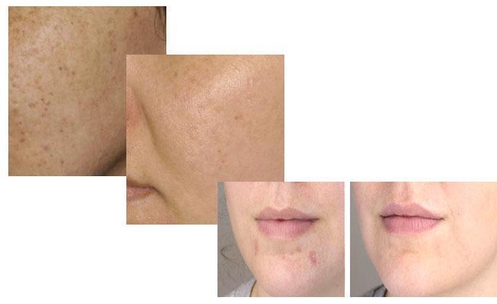 ácido retinoico para manchas en la piel