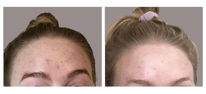 adapaleno resultados para el acne