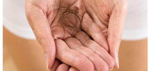 alopecia androgenica femenina