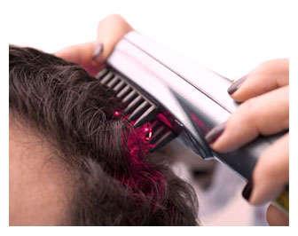 alopecia laser
