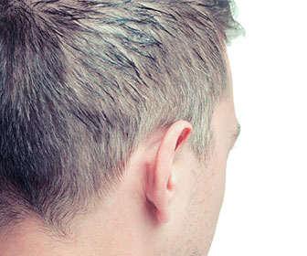 Sebal serrulata para la alopecia masculina