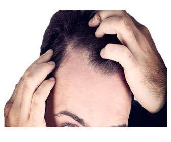 alopecia nerviosa en hombres