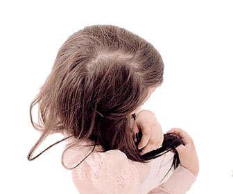 alopecia nerviosa en mujeres