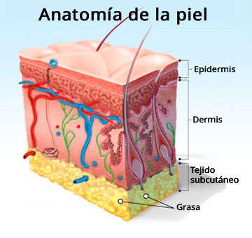 La carboxiterapia sirve para eliminar celulitis por completo?