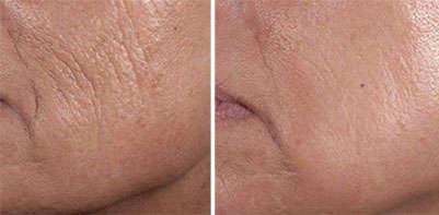 Resultados del antiarrugas inyectable