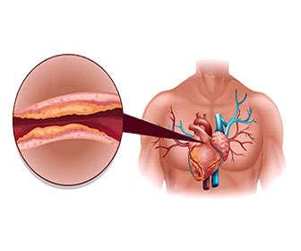 arkosterol contraindicaciones y efectos secundarios