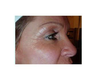 cómo eliminar las arrugas en la cara