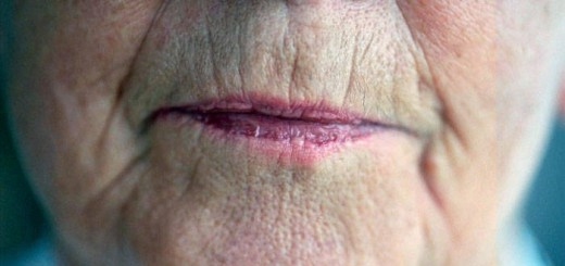 arrugas labio superior