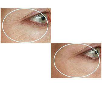 Vaselina para evitar las arrugas en los ojos