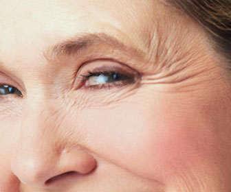 arugas faciales