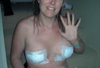aumento de senos postoperatorio