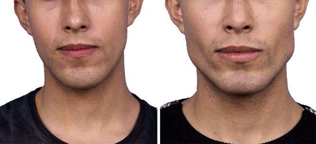 bichectomia en hombres, resultado