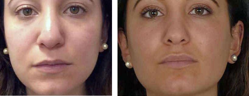 resultados de una bichectomia antes y despues