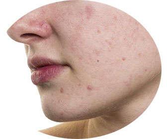 bisabolol para el acné