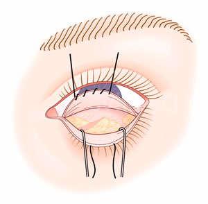 blefaroplastia transconjutival