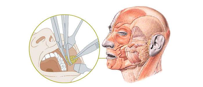 Datos sobre el procedimiento o cirugía de bolas de Bichat