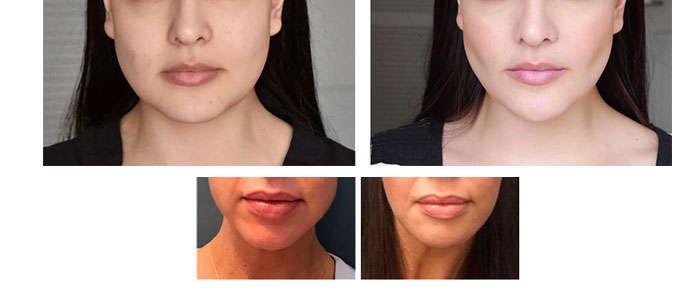 Fotos bolas de bichat antes y despues