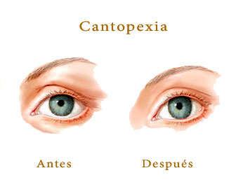 cantopexia o lifting ojos antes y después