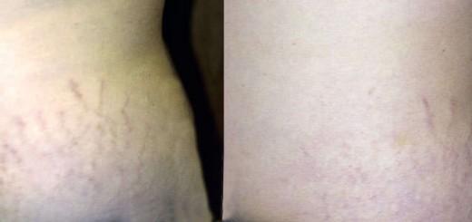 Resultados de la carboxiterapia para eliminar estrías