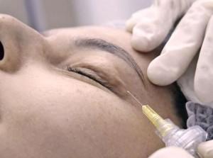 carboxiterapia ojeras