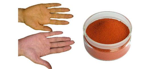carotenemia carotenosis, que es, síntomas