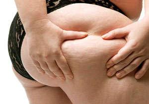 celulitis y cavitacion