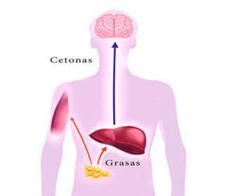 Detectar y diagnosticar cetoacidosis