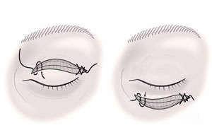 cirugia de parpados superiores inferiores