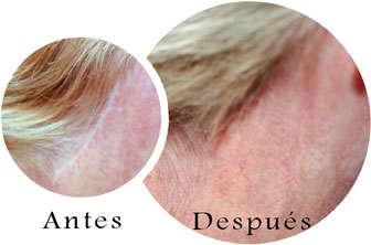 cirugia plastica cicatrices