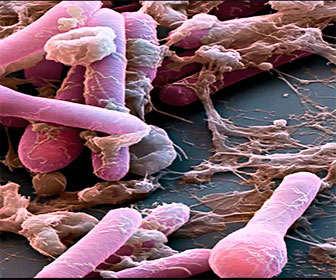 precauciones de uso de clostridium botulinum o toxina botulínica tipo A
