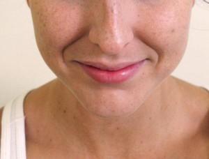 depilacion electrica barbilla resultados