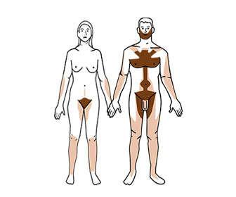 depilación genital masculina y femenina